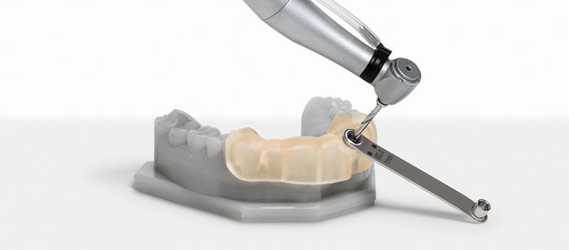 歯科用3Dプリンター Form2 サージカルガイド