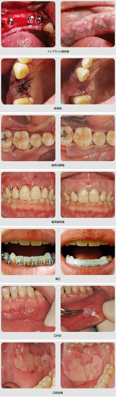 口腔内保護パッド Ora-Aid オーラエイド 使用例