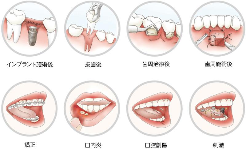 口腔内創傷保護パッド Ora-Aid(オーラエイド)の使用用途